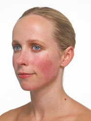 Woman diagnosed with Rosacea